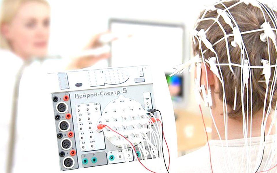 Diagnóstico Epilepsia